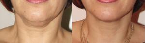 doppiomento_primaedopo_liposcultura_raoulnovelli_chirurgo_estetico_milano