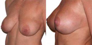 Mastopessi (sollevamento del seno cadente)