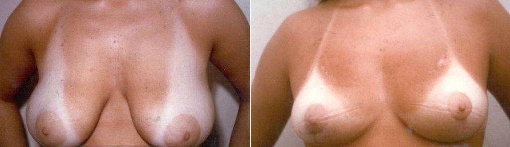Mastoplastica Riduttiva Del Seno (diminuzione del seno eccessivo)