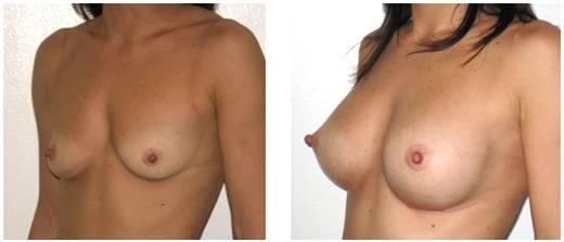 Mastoplastica Additiva (aumento del volume del seno)